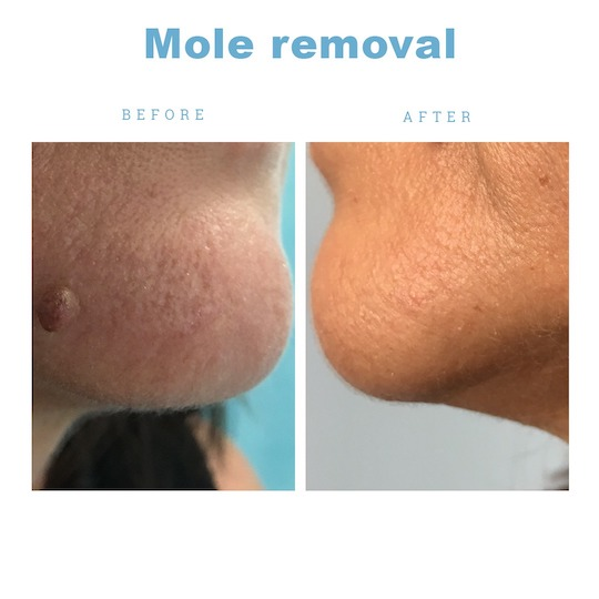 Excision recovery mole Mole removal