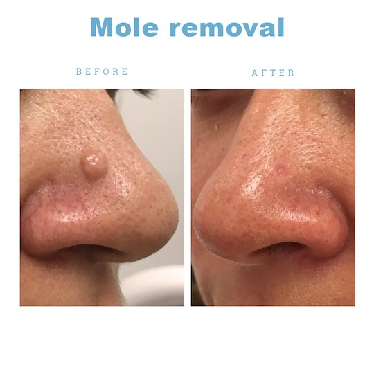 Mole excision recovery